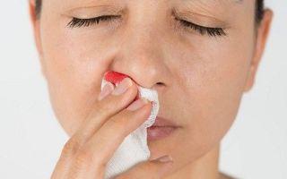 Отчего появляются кровянистые выделения из носа и распространенные ошибки при лечении