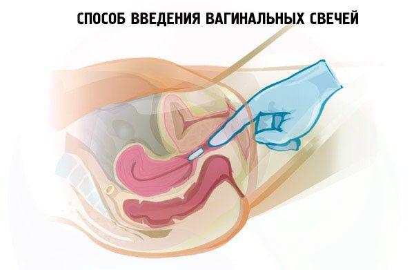 Как вводить вагинальные свечи