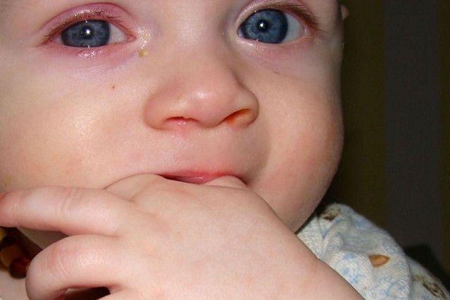 Гноятся глаза у ребенка 3 лет при орви