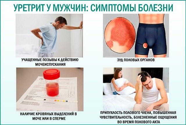 Симптомы уретрита